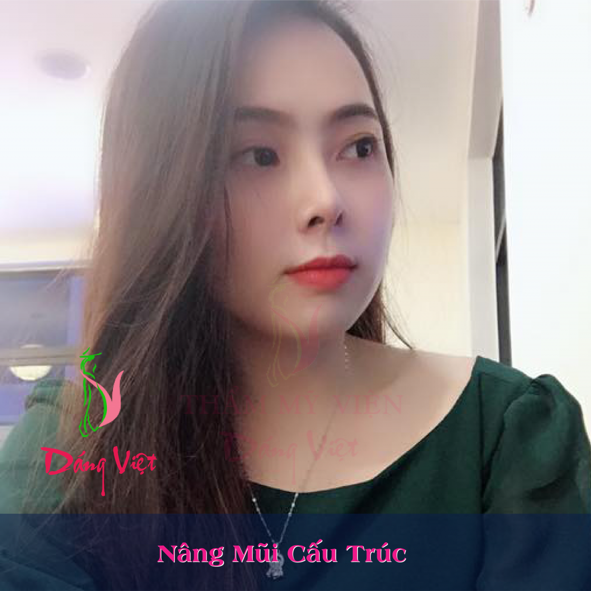 nâng mũi Sline tại Dáng Việt