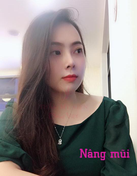 Nâng mũi tại Dáng Việt